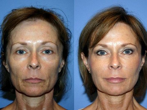 Озонотеропия: фото до и после