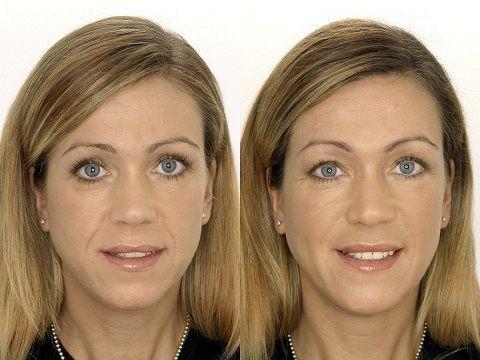Препараты для биоревитализации: фото до и после