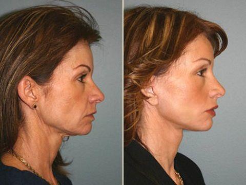 Ритидэктомия: фото до и после