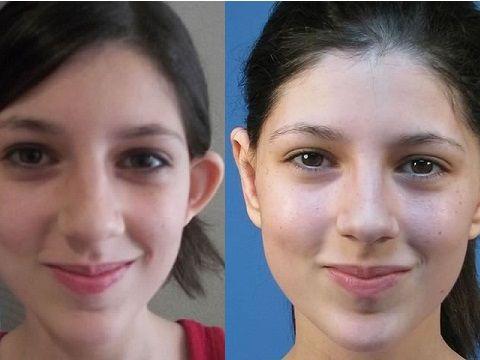 Отопластика: фото до и после