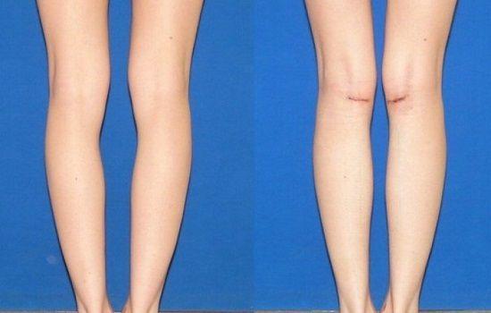 Пластика голеней: фото до и после