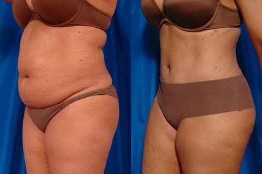 Липосакция живота: фото до и после
