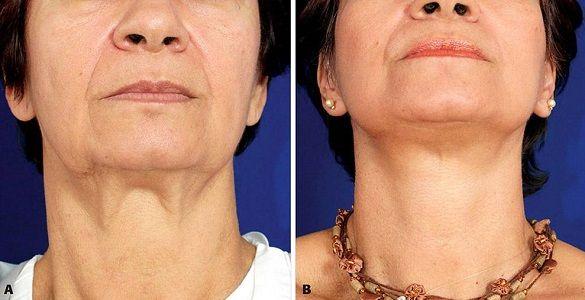 Пластика шеи: фото до и после