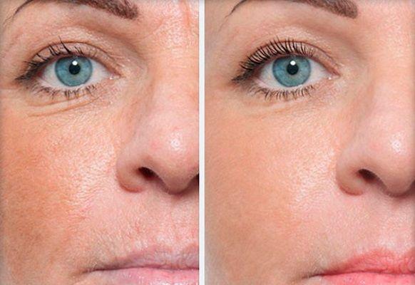 мезотерапия от кругов под глазами: фото до и после