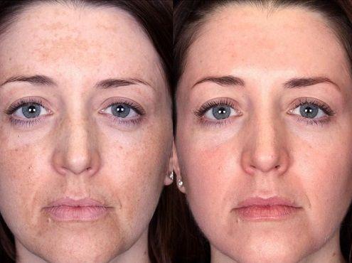 Мезотерапия лица: фото до и после
