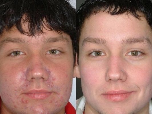 Мезотерапия при акне: фото до и после