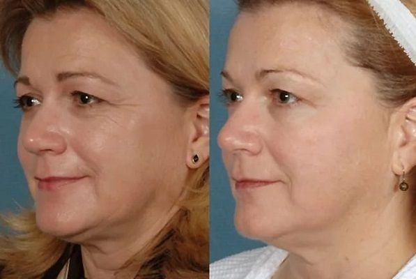 Аппаратная косметология: фото до и после