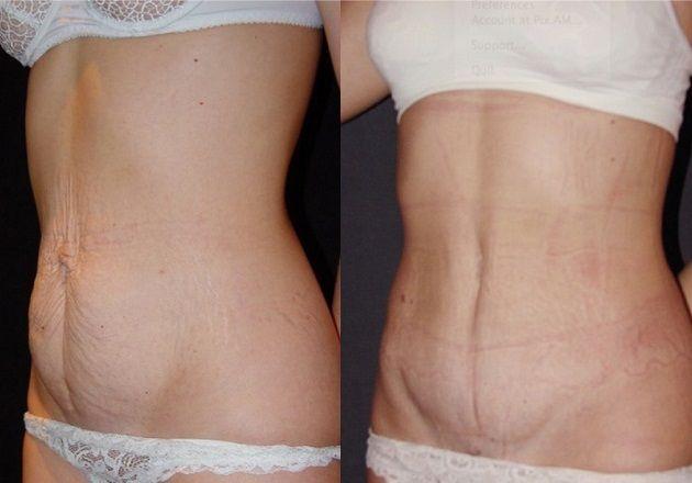 Липосакция после родов: фото до и после