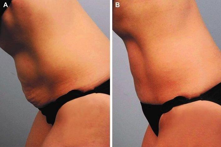 Кожа после липосакции: фото до и после