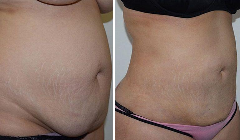 Вакуумная липосакция: фото до и после