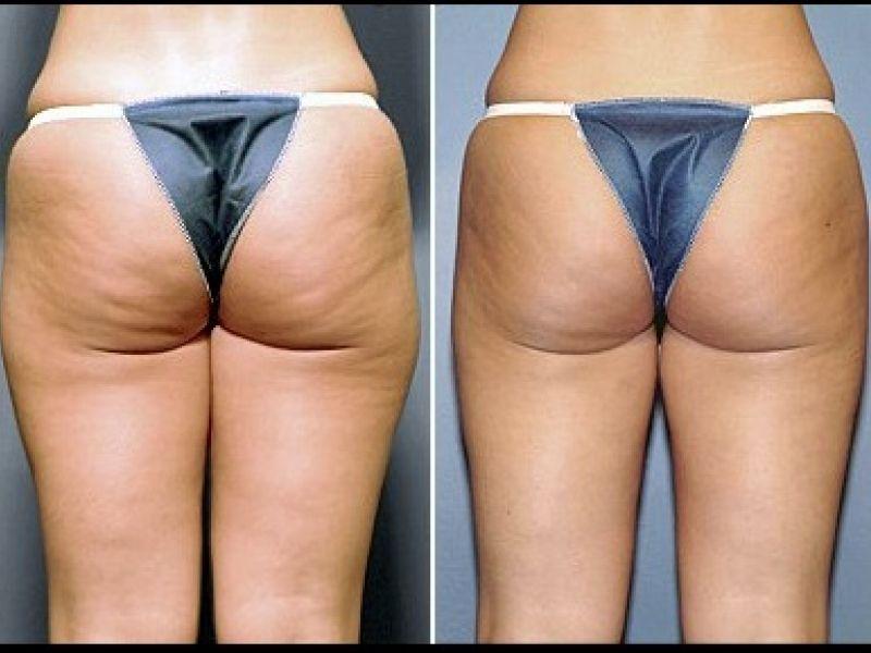 Инъекционная липосакция: фото до и после