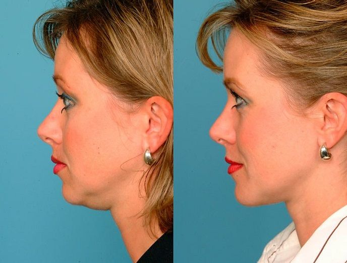 Липосакция подбородка: фото до и после