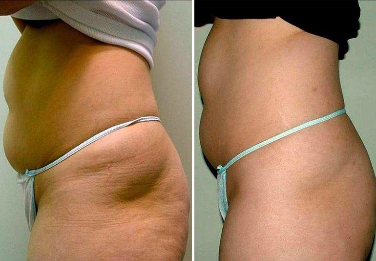 Ультразвуковая липосакция: фото до и после