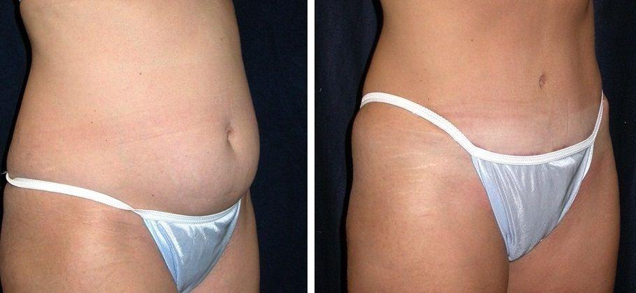 Методы ультразвуковой липосакции: фото до и после