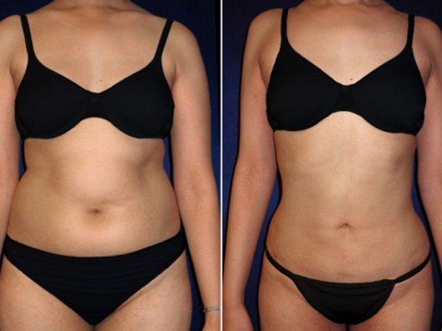 Результаты после липосакции: фото до и после