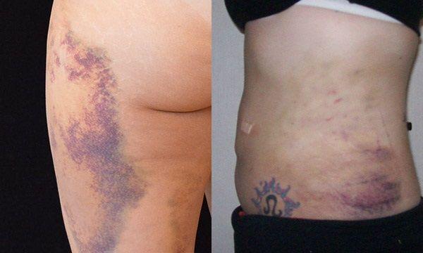 Последствия после липосакции: фото до и после