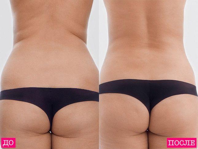 Как делают липосакцию: фото до и после