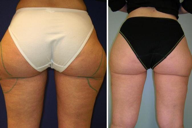 Тумесцентная липосакция: фото до и после
