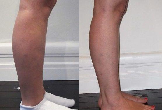 Липосакция ног: фото до и после