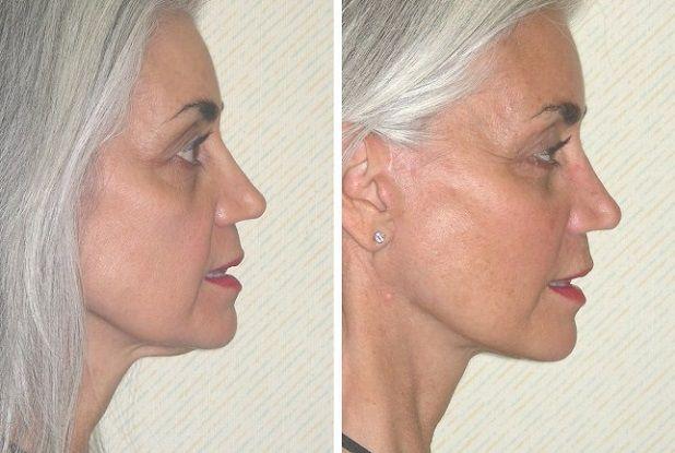 Подбородок после липосакции: фото до и после