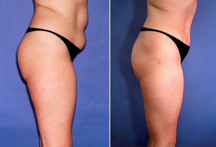 Водоструйная липосакция: фото до и после